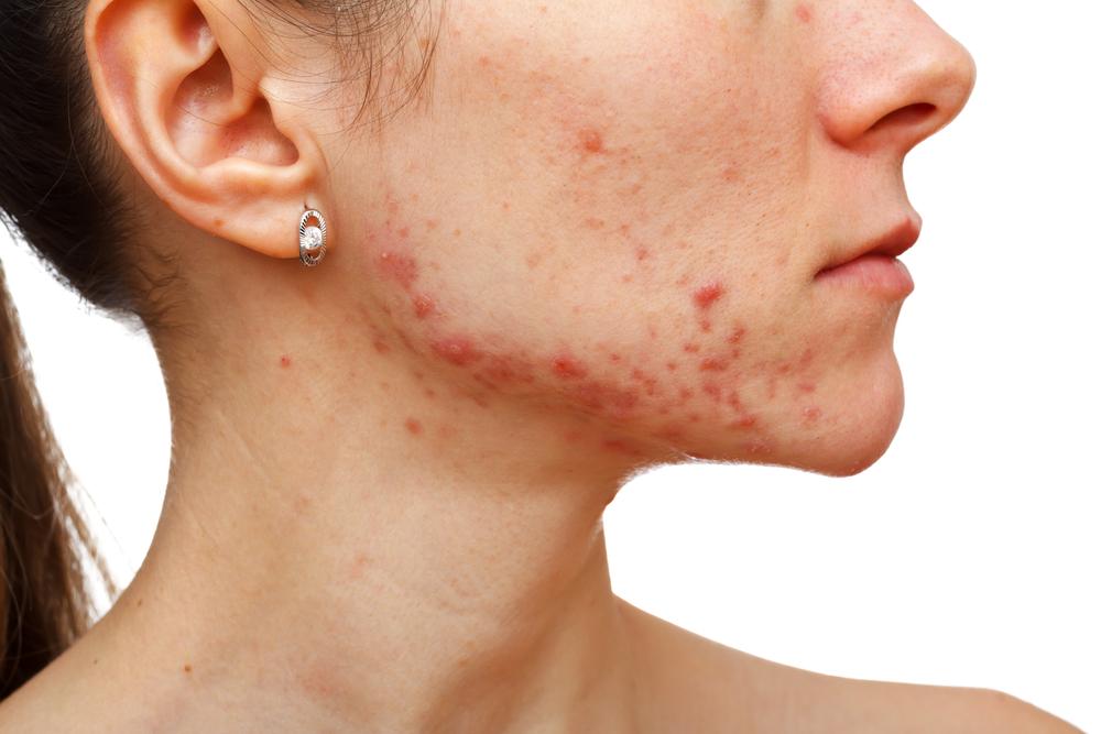 acne-woman