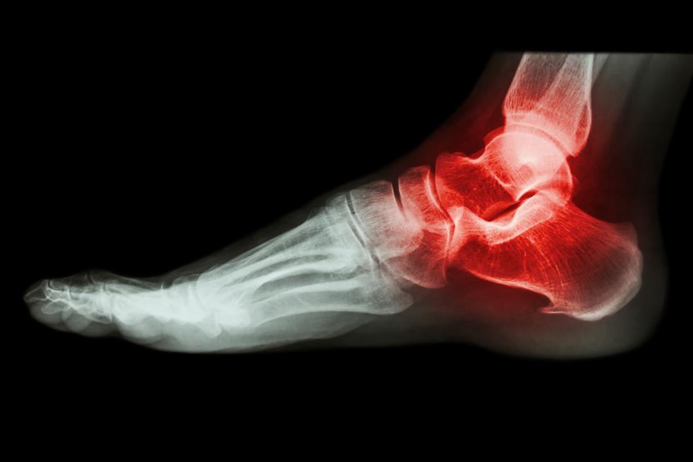 gout-foot
